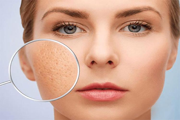 Lỗ chân lông to do nhu cầu bài tiết bã nhờn và chất thải trên da