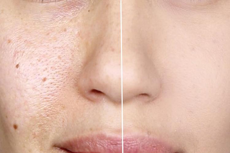 Lỗ chân lông to do thiếu hụt collagen và elastin