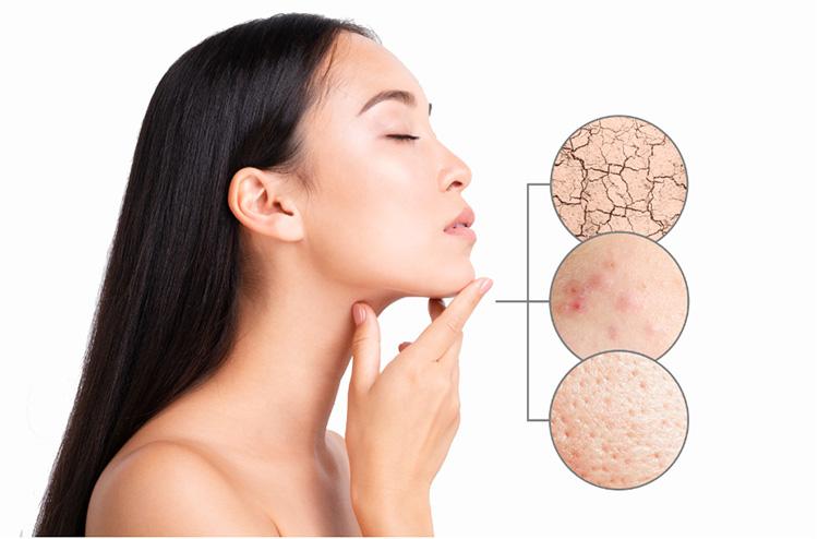 Da mặt khô do nhiều nguyên nhân